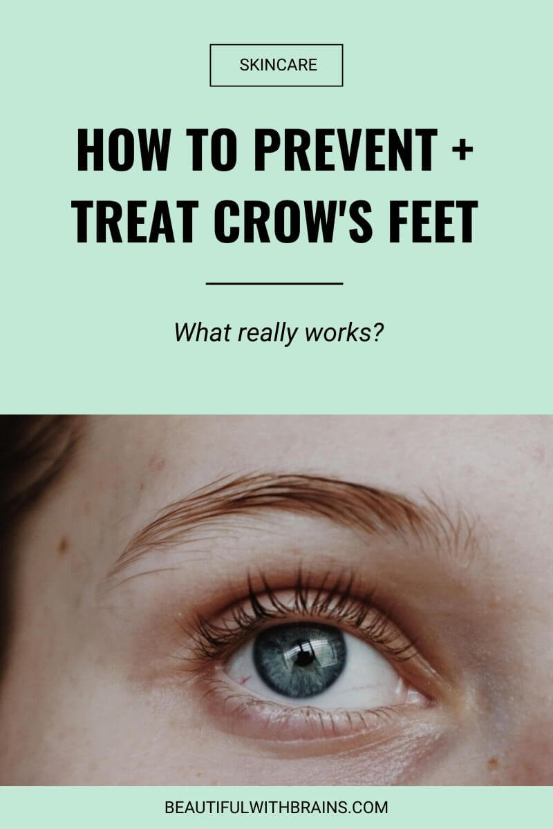 how to treat and prevent crow's feet