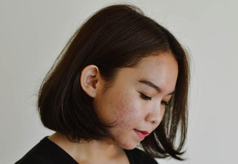 azelaic acid in skincare