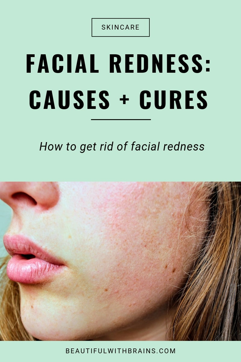 facial redness causes