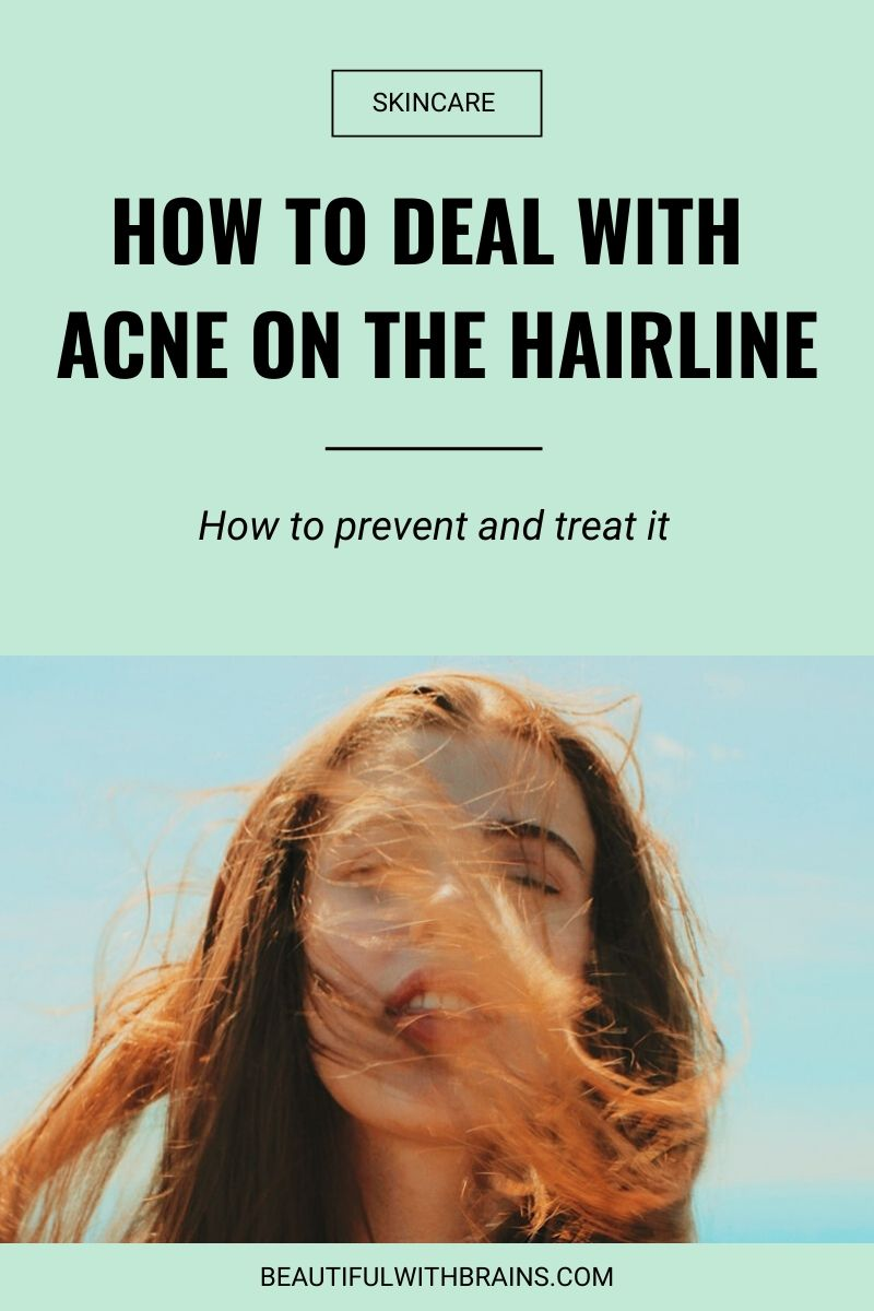 how to deal with acne on the hairline
