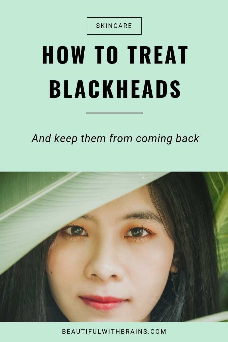 how to prevent and treat blackheads