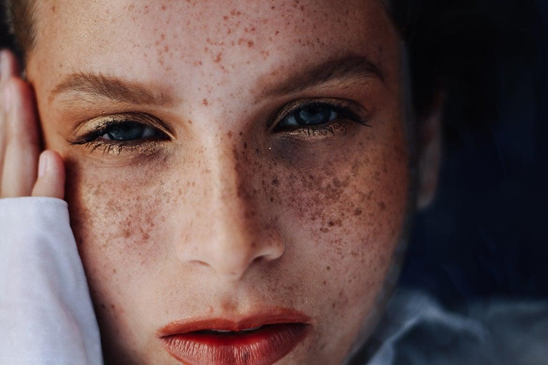 hydroquinone vs kojic acid for skin-lightening