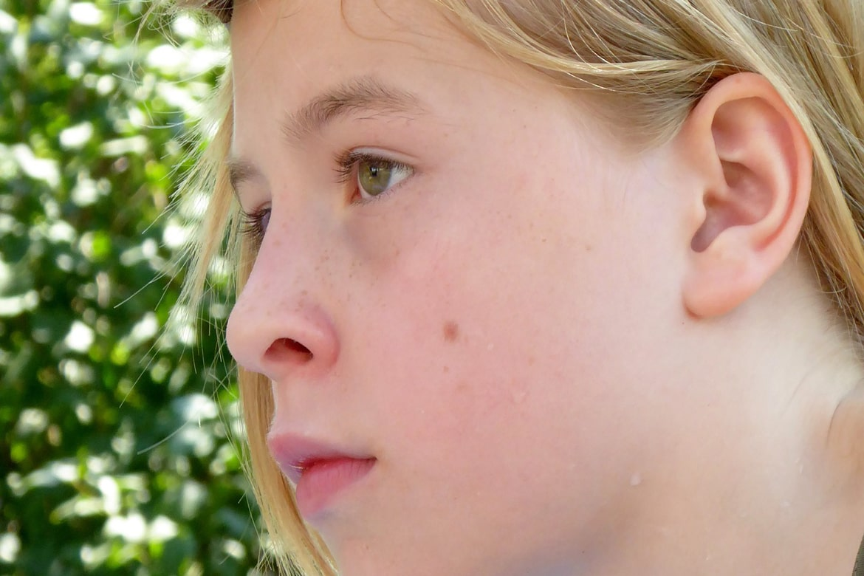 melanoma myths