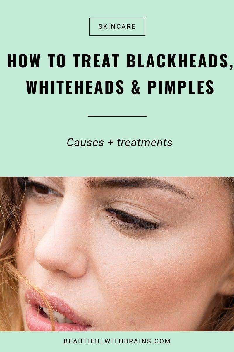 Blackheads vs Whiteheads vs Pimples: Differences & Treatments