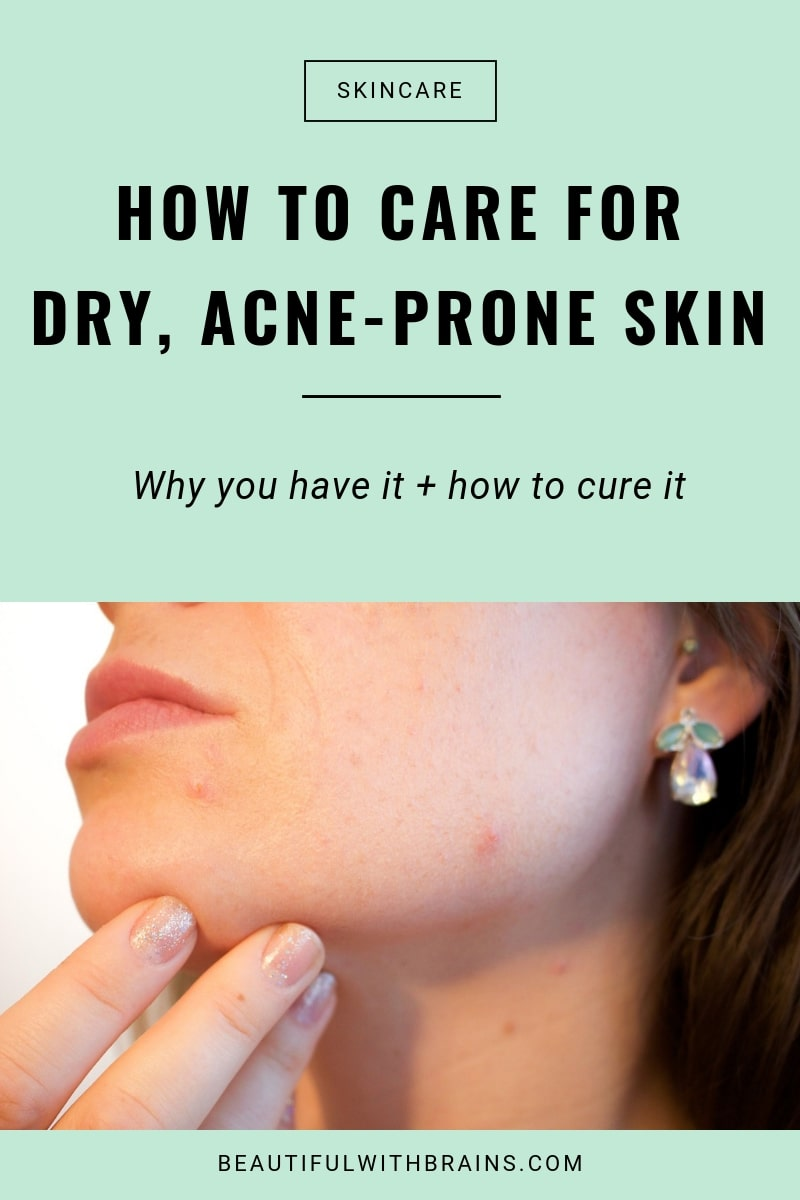 dry acne-prone skin causes cures