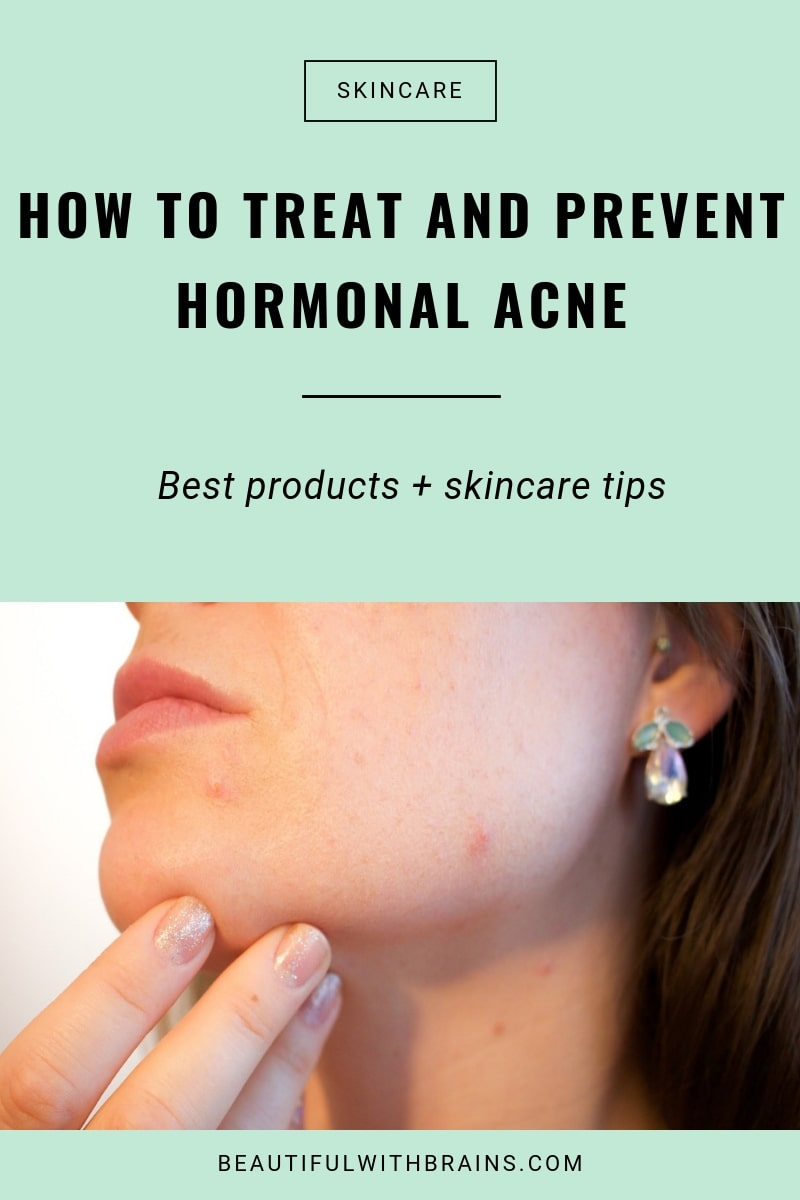 how to prevent and treat hormonal acne