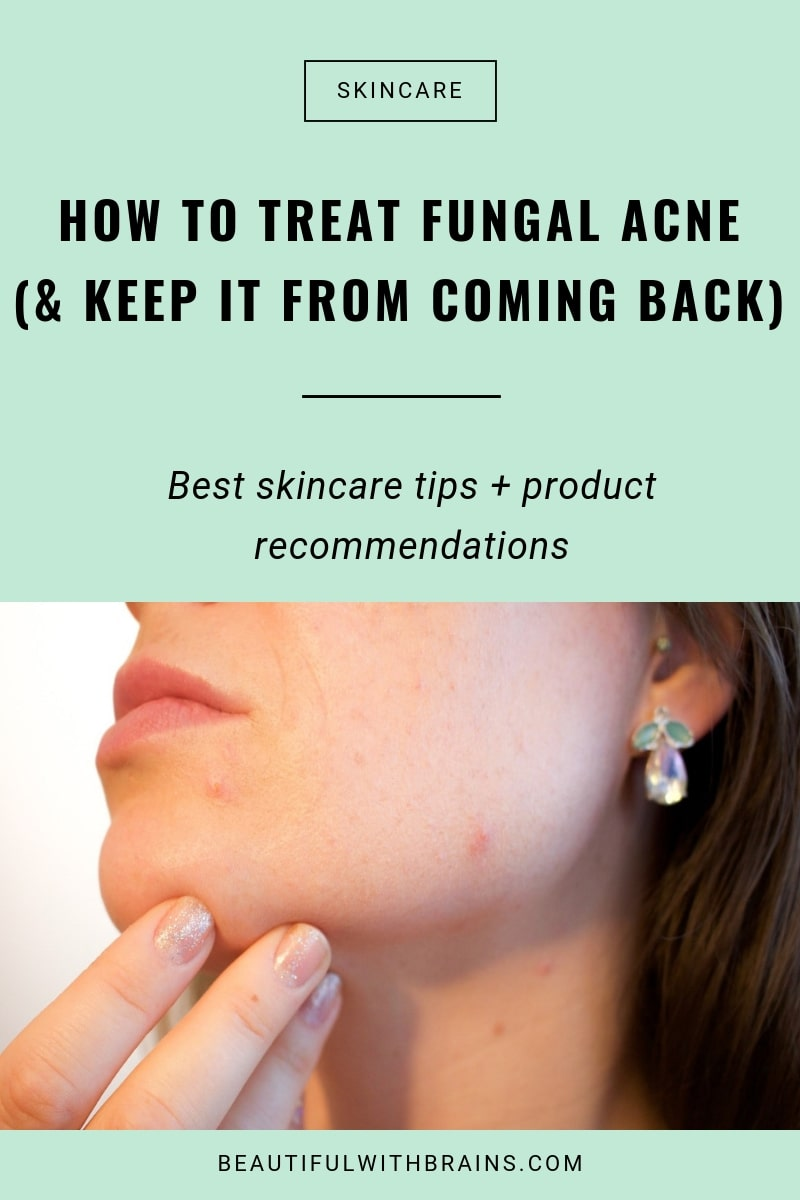 how to treat fungal acne and keep it from coming back