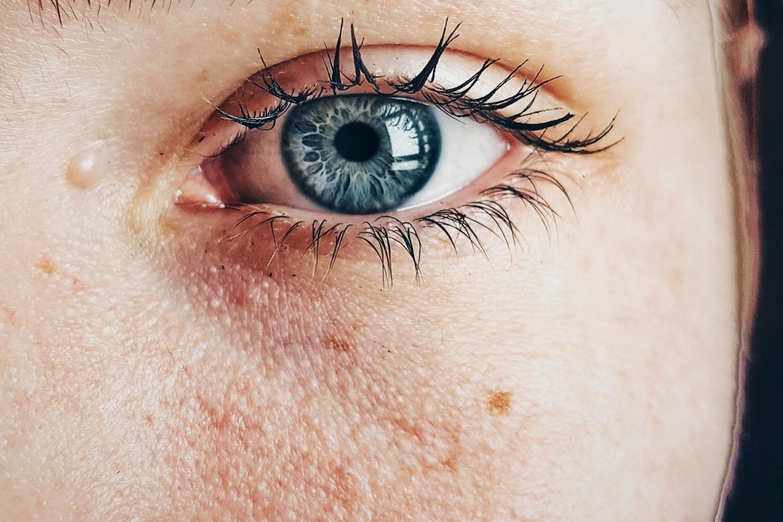 The Best Skincare Regimen To Remove Sun Spots – Beautiful