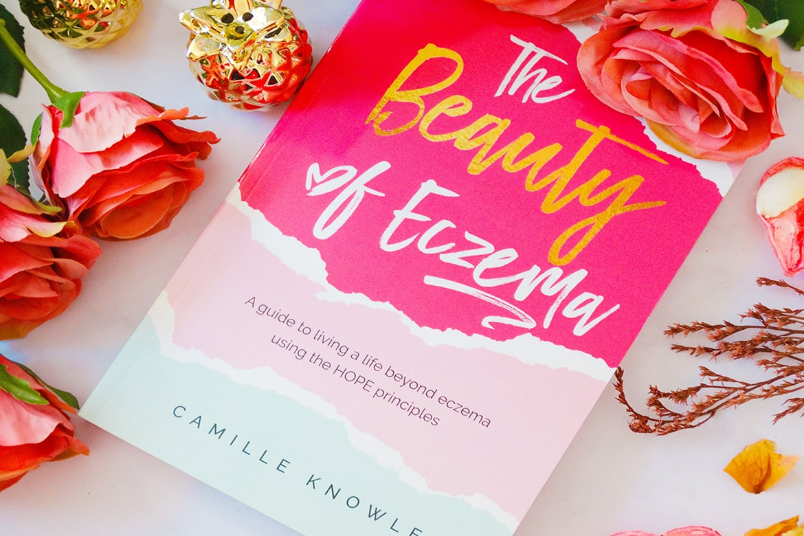 the beauty of eczema by camille knowles 01