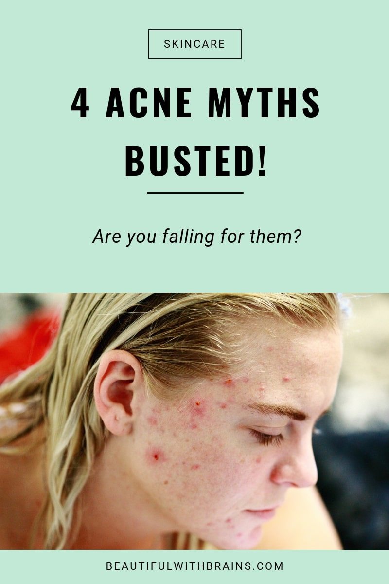 4 acne myths