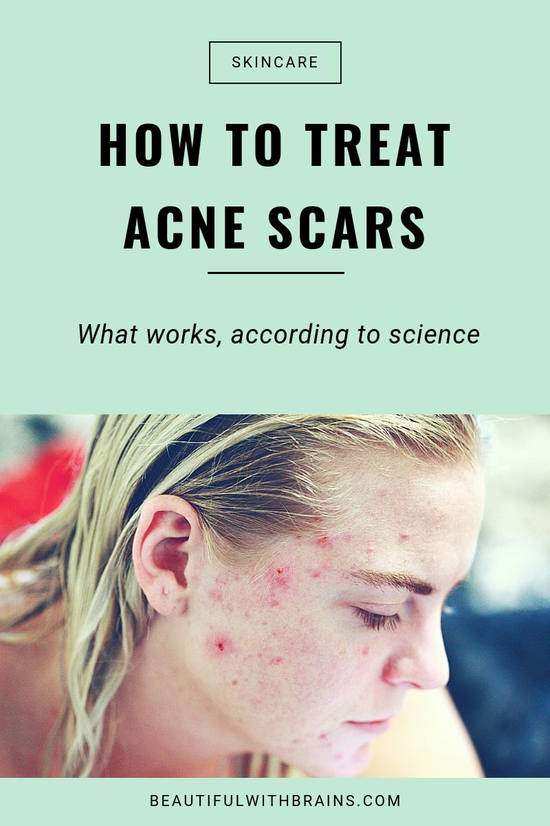 how to treat acne scars