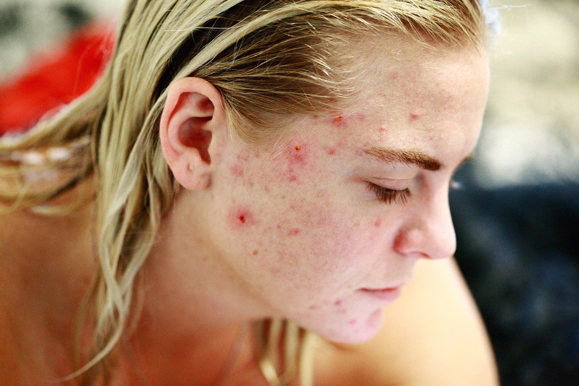 treat acne scars
