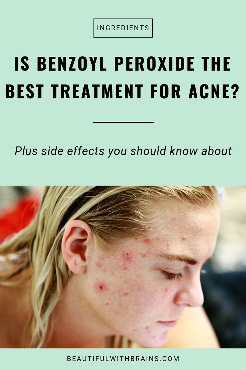is benzoyl peroxide the best treatment for acne