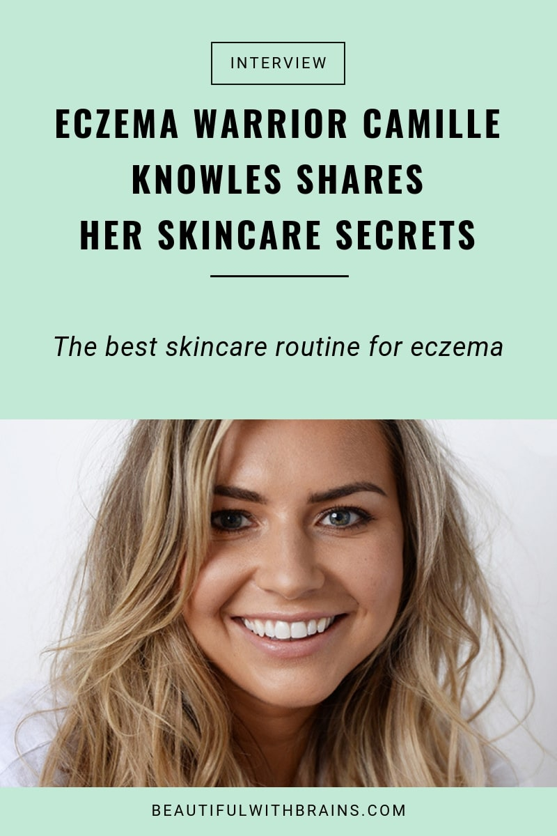 camille knowles eczema interview