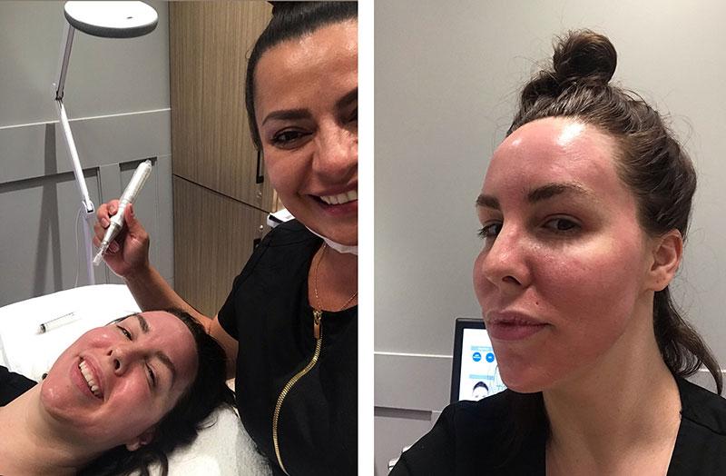 Sarah sinden-lafleche skincare treatment