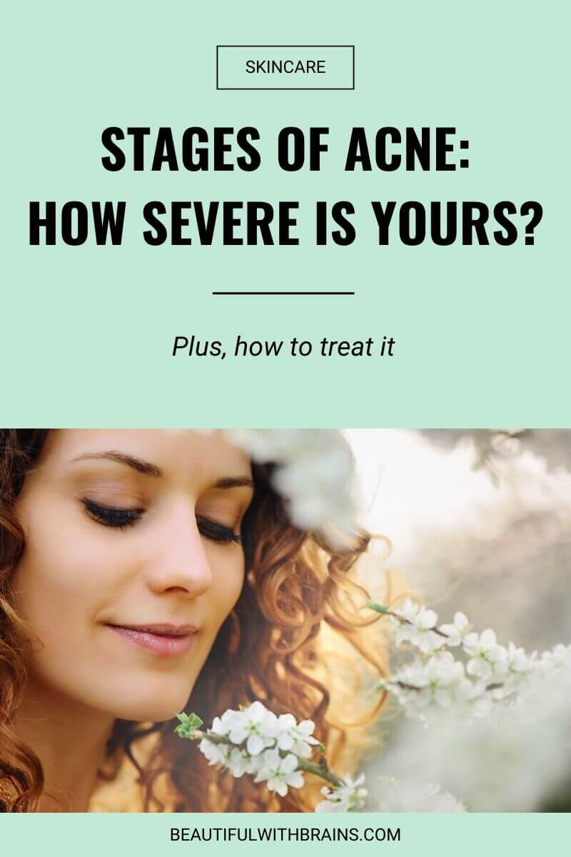 stages of acne and how to treat them
