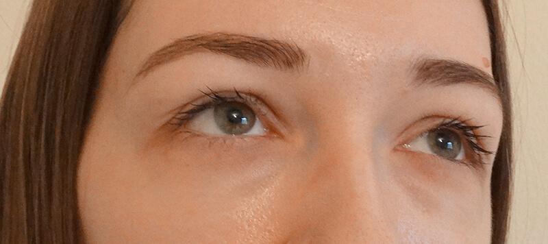 bioptic eye contour treatment 02