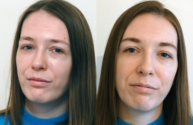 biotptic eye contour treatment 01
