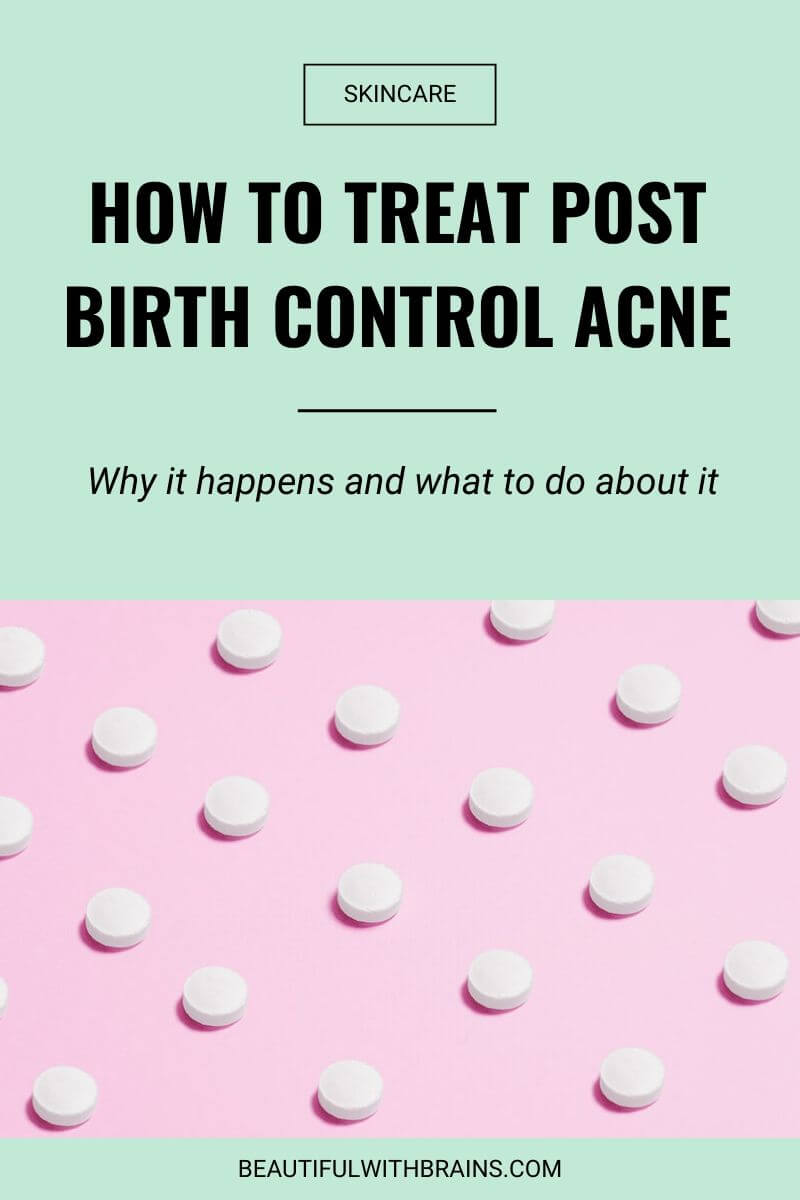 how to treat post birth control acne