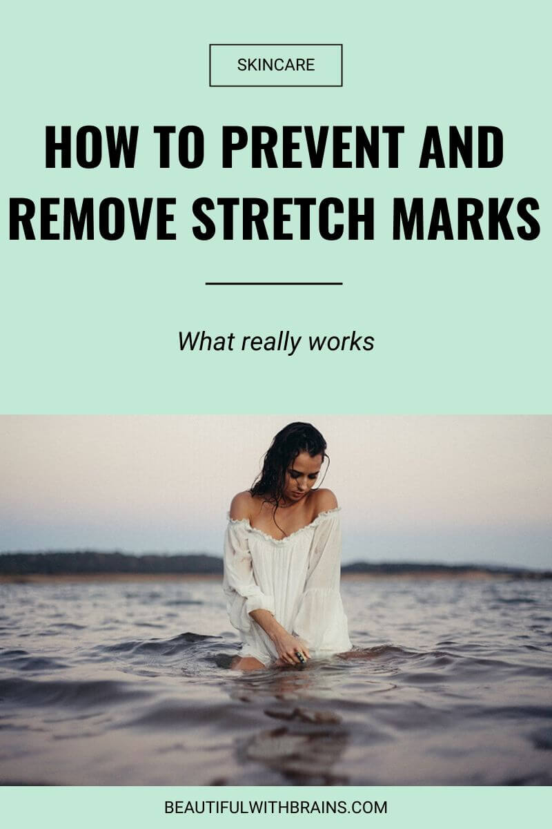 best stretch marks removal treatments