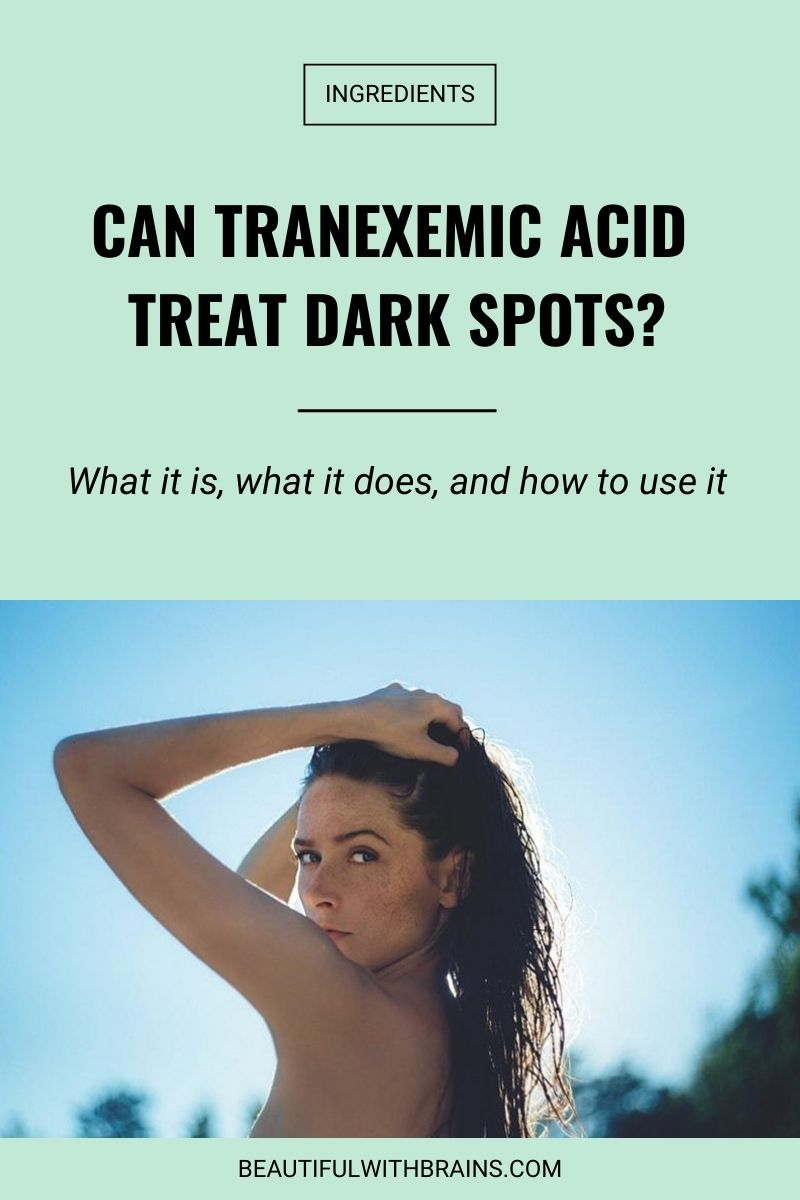Can Tranexemic Acid treat dark spots