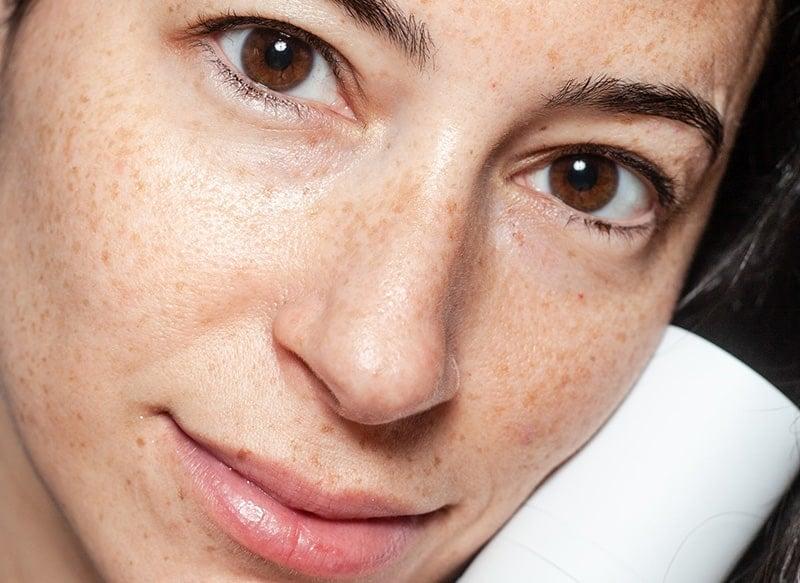 acne marks vs acne scars