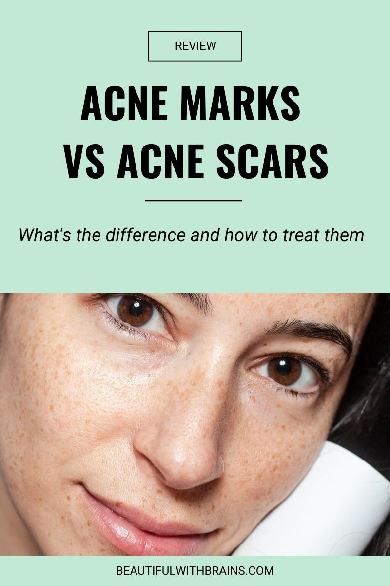 difference between acne marks and acne scars