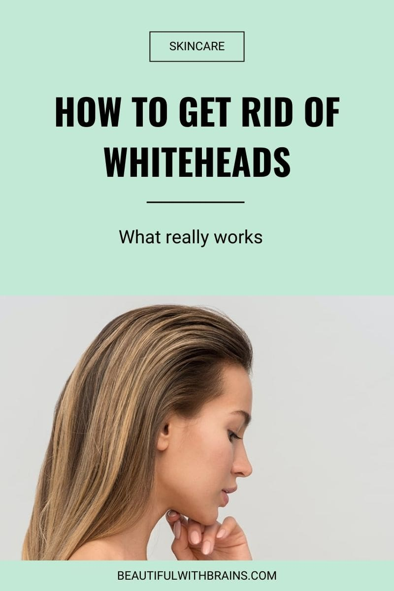 prevent and get rid of whiteheads